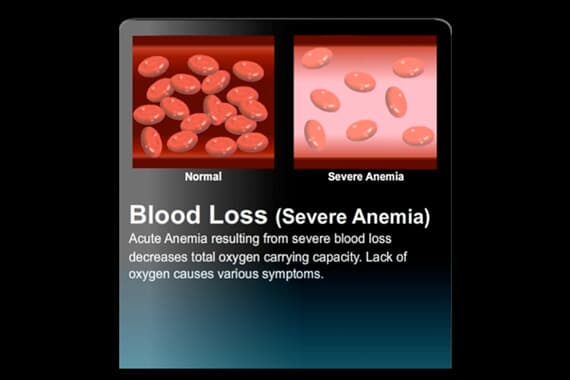 Blood-Loss