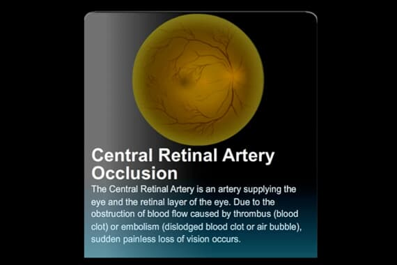 Central Retinal Artery