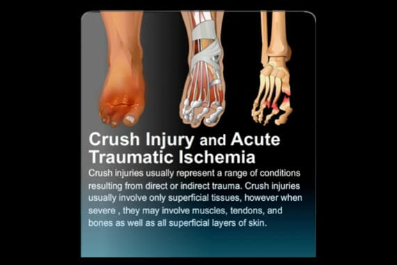 Crush Injury and Acute