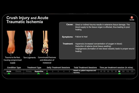 Crush Injury Acute