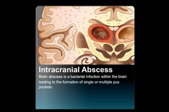 Intracranial Abscess