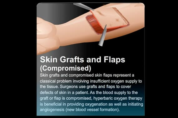 Skin Grafts and Flaps