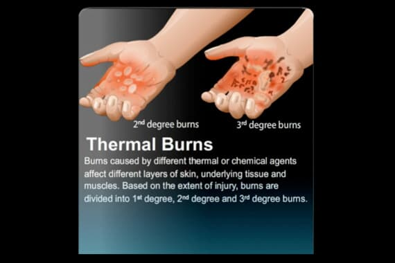 Thermal Burn